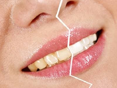 Como blanquear los dientes de forma natural beliefnet - Como blanquear los dientes en casa ...