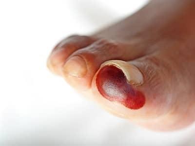 hongos en los pies ampollas diabetes