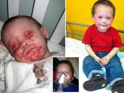 Un niño de cinco años de edad que sufre un eczema severo, puede apenas caminar.