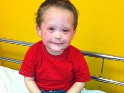"""""""Mamá, por favor, déjame morir"""". Suplica niño de 5 años con un eczema tan grave que casi no puede dormir o caminar."""