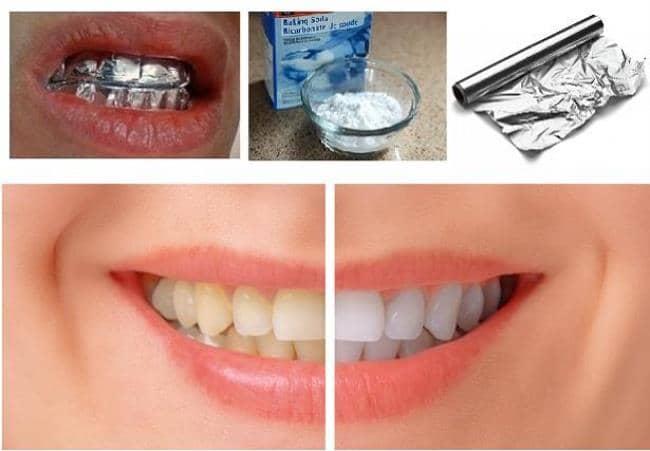Como blanquear mis dientes en casa yahoo dating 1