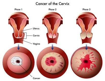 Cancer vaginal