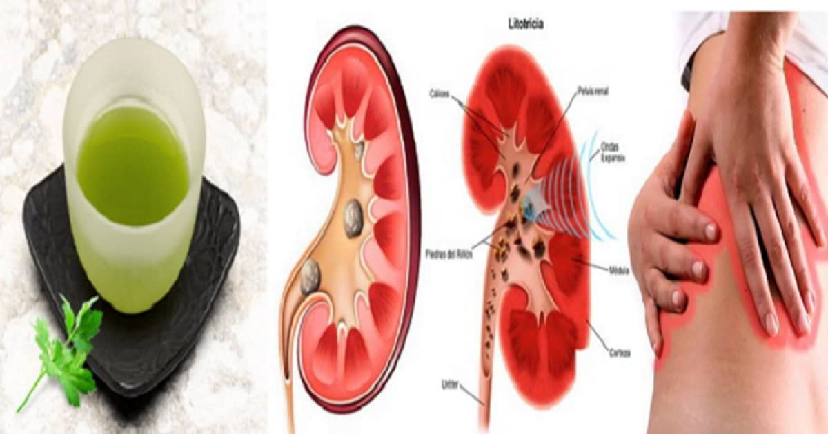 en 6 dias eliminaras las piedras en los rinones con este remedio