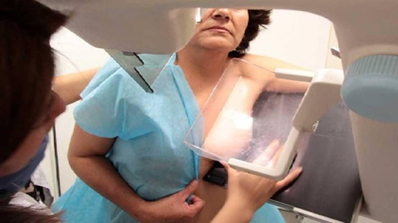 prevenir cancer de mama