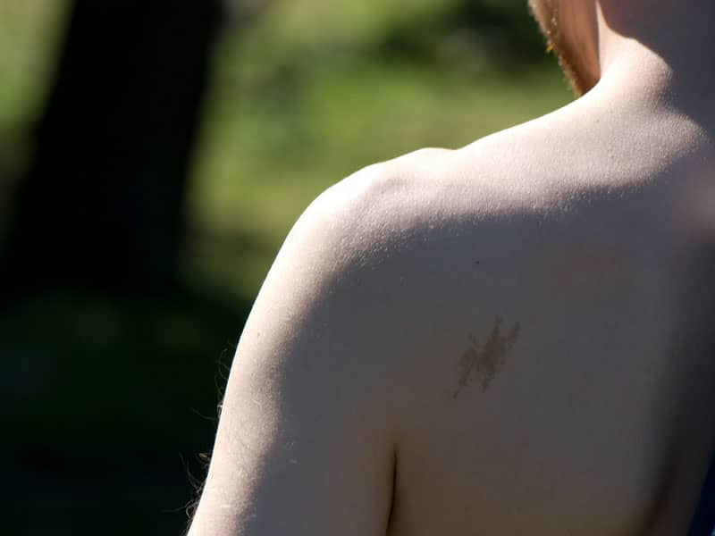 Birthmark on Back