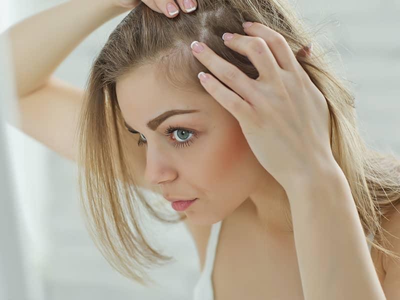 woman, hair loss