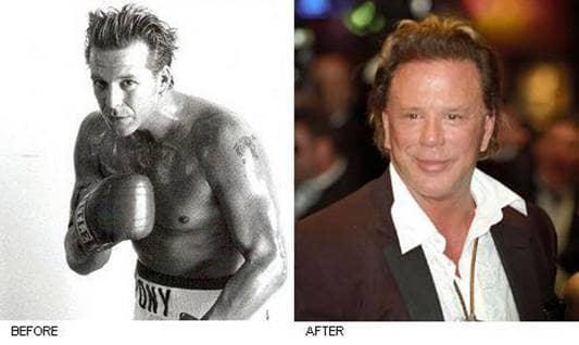 Celebrity Surgery Nigh...