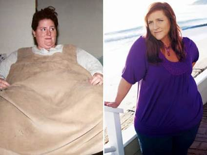 Ruby S Weight Loss And Recovery Journey Beliefnet