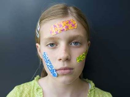 Girl with band-aids on her face
